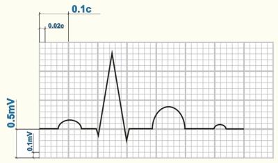 Схема нормальной ЭКГ на миллиметровой бумаге.